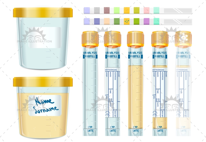 analysis, cap, care, centrifuged, checkup, clinical, collection, container, cup, diagnostic, disease, elderly, exam, Hospital, laboratory, pee, research, routine, sample, screening, specimen, sterile, stick, test, trial, tube, urinalysis, urine, vial, yellow