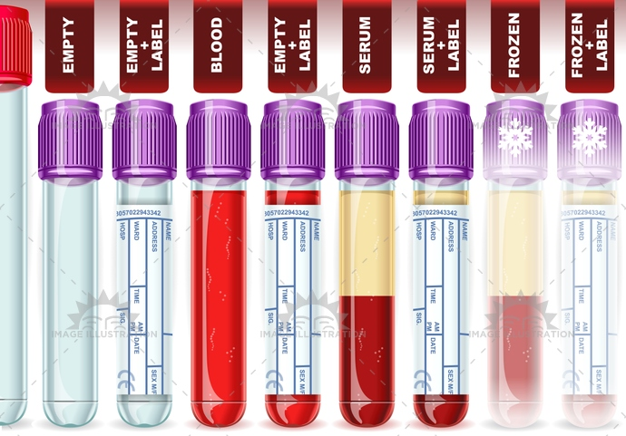analysis, blood, centrifuged, diagnosis, diagnostic, disease, evaluation, frozen, genomic, hematology, hemolysis, Hospital, laboratory, lavendercap, medical, pharmacokinetic, plasma, platelets, rbc, routine, sample, screening, serum, specimen, test, transnationalresearch, trial, tube, vial, WBC